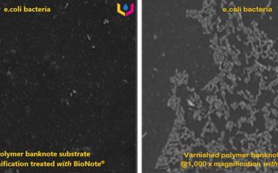 large-ecoli bacteria Images